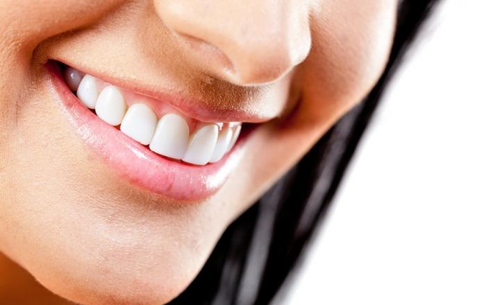 Dental care in France